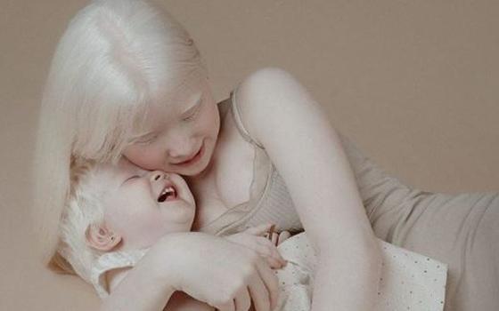 albinas.JPG