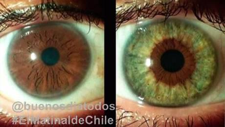 Láser cambia el color de los ojos