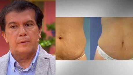 """""""Guatita de delantal"""": Experto explica que la cirugía debe ser la última opción"""