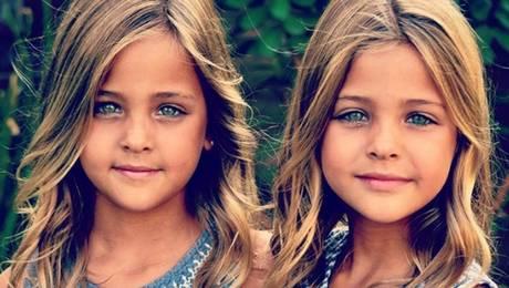 Conoce a las gemelas más hermosas del mundo