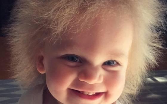 El desconocido síndrome del cabello impeinable