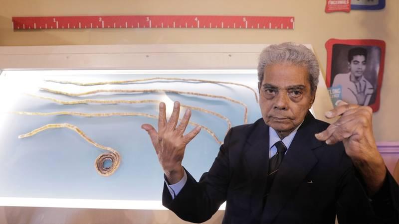 La radical decisión del hombre con las uñas más largas del mundo